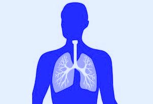 pneumonia-clipart-biyMeMG5T